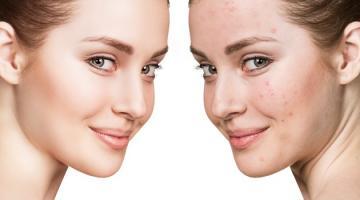 Как вылечить угревую сыпь и ухаживать за кожей с акне?