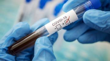 Пандемия: в мире COVID-19 заболели более 53 млн человек