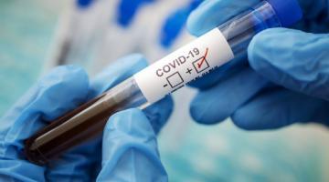 На Херсонщине за сутки не обнаружили ни одного случая коронавирусной инфекции